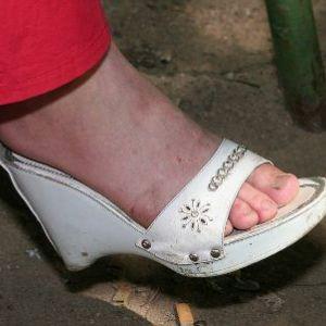 Чим швидко і ефективно вилікувати грибок нігтів на ногах - все методи лікування захворювання!