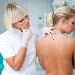 Чим і як ефективно видалити папіломи і бородавки? Наслідок виведення хірургічним шляхом, лазером