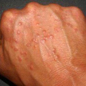 Що робити, якщо з`явилися пухирі на руках, причини виникнення та перша допомога