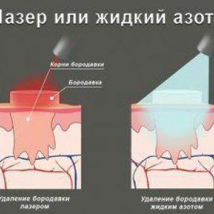 Що краще - видалення бородавок лазером або азотом?