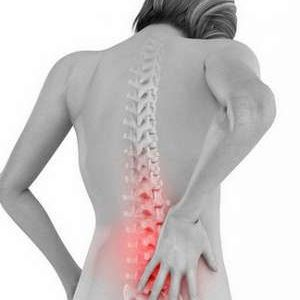 Що таке радикуліт, чим він відрізняється від остеохондрозу, і як його лікувати