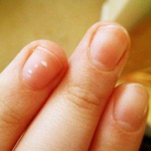 Що означають плями на нігтях у дорослих і дитини?