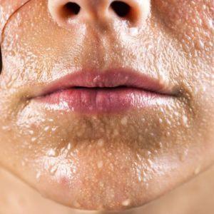 Як лікувати гіпергідроз?