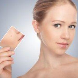 Фото і причини виникнення плоских бородавок на тілі, як позбутися від них в домашніх умовах і клініці?