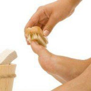 Ефективне лікування підошовної бородавки в домашніх умовах