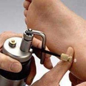 Як позбутися від шіпіци або видалення підошовної бородавки рідким азотом
