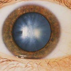 Як лікувати катаракту самостійно?