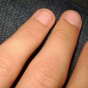 Як лікувати задирки на пальцях: неприємні дрібниці