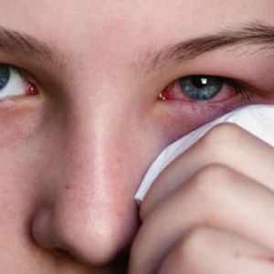 Як правильно лікувати кон`юнктивіт у домашніх умовах самостійно