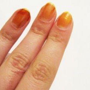 Як проводять лікування грибка нігтів йодом?