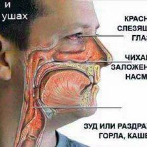 Як розпізнати алергію?