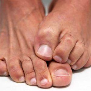 Як прибрати або позбутися від бородавок на ногах в домашніх умовах: народні та медичні засоби