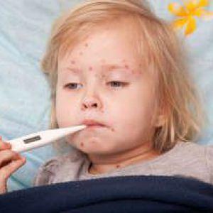 Як вчасно розпізнати вітряну віспу у дитини?