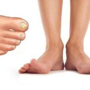Яка мазь від грибка нігтів використовується при лікуванні?