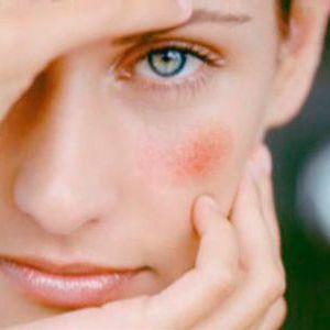 Червоні плями на обличчі: що це?
