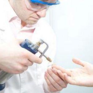 Кріодеструкція або видалення мозолів рідким азотом: процес виведення наросту, плюси і мінуси процедури