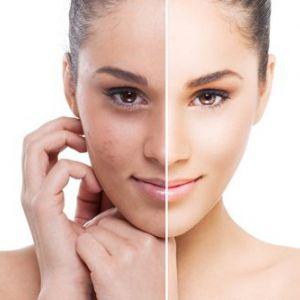 Лазерне лікування акне: чиста шкіра в короткі терміни!