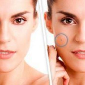 Лікування бородавок (папіломи) народними засобами на обличчі