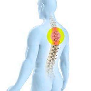 Лікування остеохондрозу шийно-грудного відділу хребта - найпопулярніші методи