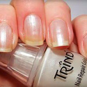 Кращий лак для лікування нігтів