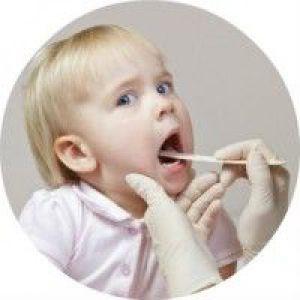 Мононуклеоз у дітей - що це за хвороба, її причини, симптоматика і лікування