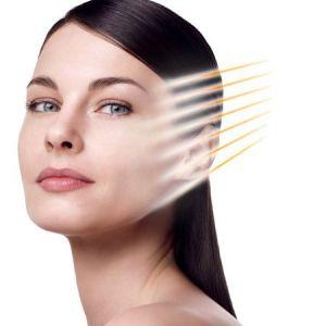 Нитки для підтяжки обличчя - гідна альтернатива пластичної операції