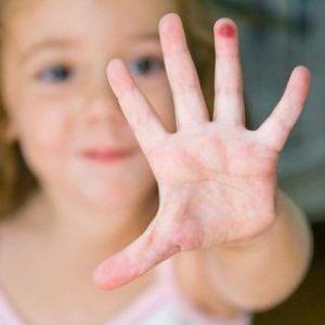 Від чого і чому у дитини на руках бородавки ?! Причини і симптоми появи