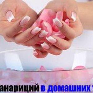 Панариций: лікування в домашніх умовах
