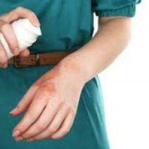 Перша допомога при опіку. Чим лікувати опіки з пухирями, якщо пухир лопнув