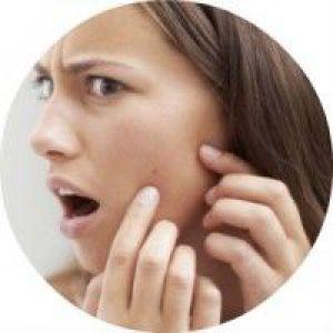 Правильне застосування левоміцетину проти прищів на обличчі