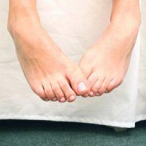 Причини і лікування мікозу нігтів