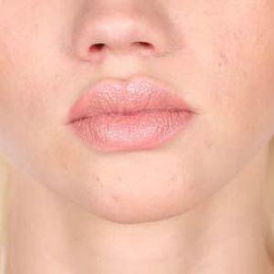 Причини чому з`являються прищі на обличчі