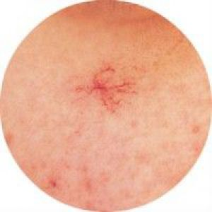 Причини появи і лікування купероза на обличчі