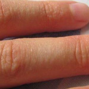 Причини появи і лікування дрібних прищів на руках