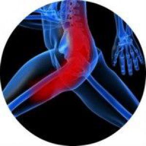Симптоми і лікування защемлення сідничного нерва