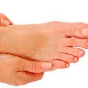 Засоби народної медицини: лимон проти грибка нігтів