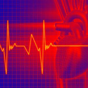 Тахікардія - як перемогти недугу в домашніх умовах?