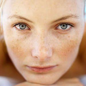 Прибираємо пігментацію на обличчі косметичними кремами і народними засобами