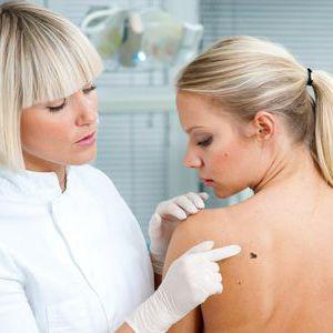 Видалення родимок сургитрон без болю, без шрамів