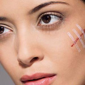 Видалення шрамів на обличчі і тілі